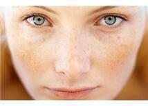 Güneş cildiniz için tehlike haline gelmesin!