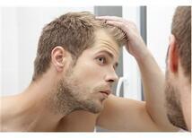Saç Ekimi Hakkında 7 Mit
