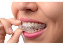 Çocuklarda ve Yetişkinlerde Görülen Diş Renkleşmeleri ve Giderme Yöntemleri