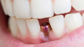 İmplant tedavisi sonrası ağız bakımı nasıl olmalıdır?