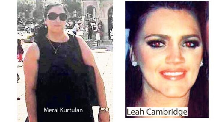 Liposuction sonrası ölüm