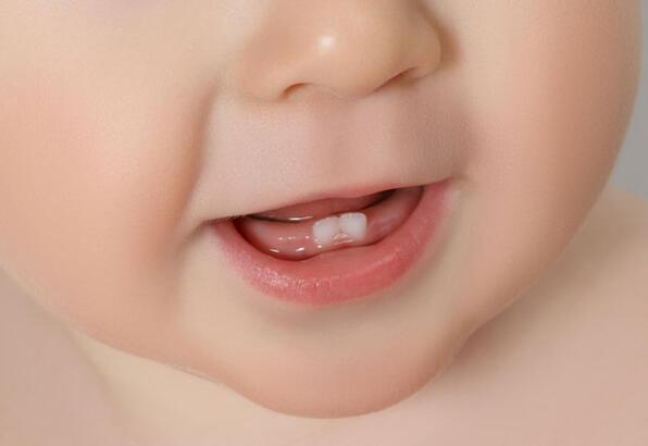Bebeklerde diş çıkarma süreci nasıl olur?