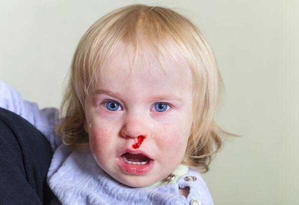 Çocuğumun burnu neden kanıyor?