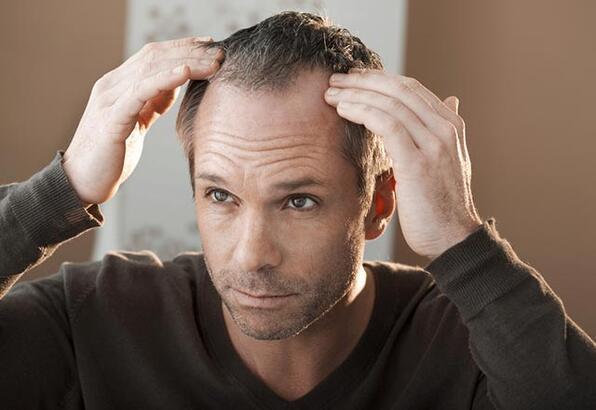 Orta yaş ve sonrası erkeklerde oluşan saç kayıpları önlenebilir mi?