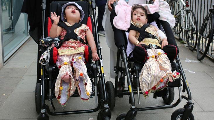 Yapışık ikizler 50 saatten uzun süren ameliyatlarla ayrıldı