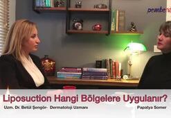 Liposuction Hangi Bölgelere Uygulanabilir