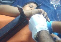 Demir korkuluk 11 yaşındaki çocuğun bileğine saplandı