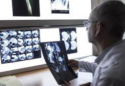 İlk kez renkli ve 3 boyutlu röntgen insan üzerinde denendi