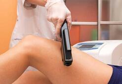 Lazer epilasyon zararlı mıdır Nasıl yapılır