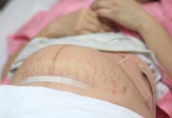 Doğum sonrası estetik ameliyatları