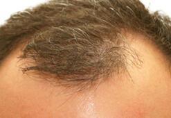 Erkeklerin yeni favorisi: Saç Fiberi