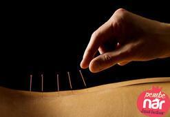 Akupunktur nedir, hangi hastalıklara iyi gelir
