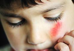 Çocuk istismarına eğitimle çözüm bulunacak