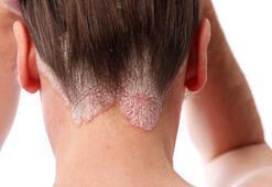 Sedef sadece cildi etkilemiyor
