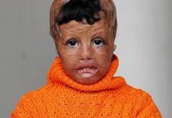 Savaşta yüzü yanan minik Evin, AÜ'de sağlığına kavuşacak