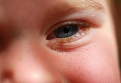 Çocuklarda göz çapaklanması neden olur