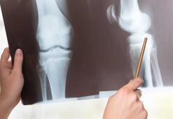 Kemikleri güçlendiren 10 etkili öneri
