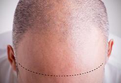 Saç ekimi ağrılı bir işlem midir