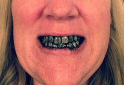 Evde diş beyazlatma yöntemleri işe yarıyor mu
