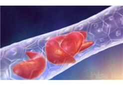 Akdeniz anemisi tedavisinde kök hücre nakli