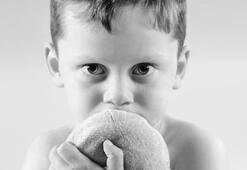 Otistik çocuklara sıcak su ve parazit terapisi