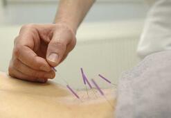 Akupunktur nedir, nasıl yapılır