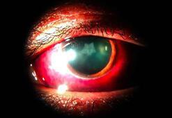 Bir adamın gözünde travmatik yaralanma sonucunda yıldız oluştu