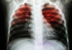 Tüberküloz hastalığının belirtileri nelerdir