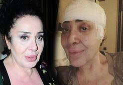 Nur Yerlitaş ameliyatını herkesten gizledi