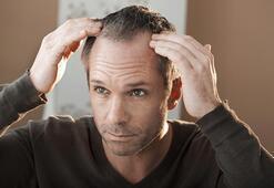 Bilgisayar destekli saç analizinin önemi