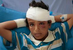 Yemende çatışmalar 7 bin 500 çocuğun ölümüne yol açtı