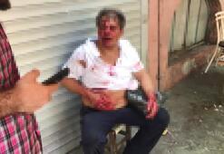 Çocuğu taciz ettiği iddia edilen kişi önce darp edildi sonra bıçaklandı