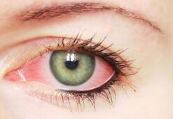 Göz kuruluğu sendromuna dikkat