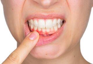 Dişleriniz sağlığınızı ele veriyor