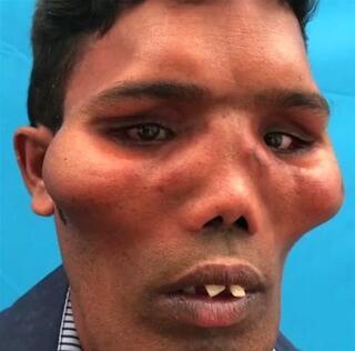 Dünyanın en tuhaf hastalıkları