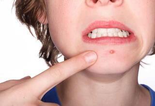 Vücudunuzun toksinlerle dolu olduğunu gösteren işaretler
