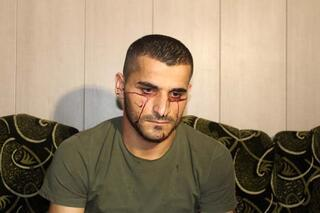 Kan ağlayan Iraklı genç hastalığına çare arıyor