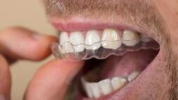 Diş teliyle gelin olmak istemeyenlerin alternatifi: Telsiz ortodonti