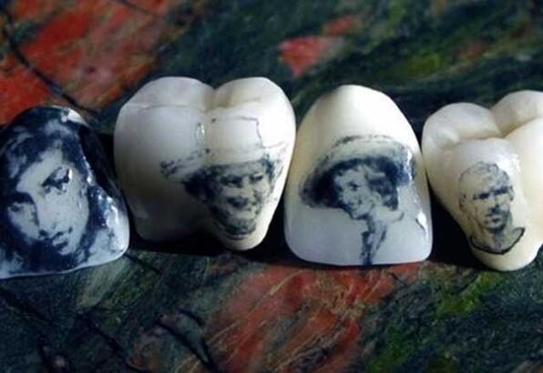 Dişte yeni trend: Diş dövmesi