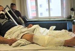 Burnunu ve bacağını parçaladılar, annesi son anda kurtardı Beni götürüp getirdiler...
