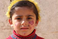İdlibde şark çıbanı tehlike saçıyor
