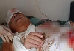 Terörist Mihraç Ural patlamada yaralandı iddiası