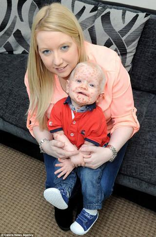 Bebeğin yüzündeki şişlikler korkutuyor